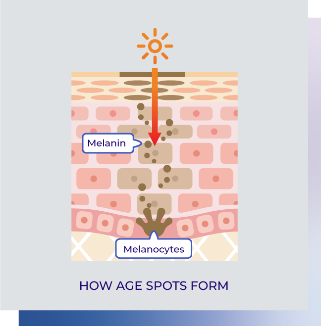 age-spots-form